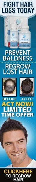 Stop hair loss now with Provillus!